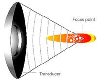 lesion-tache-focal
